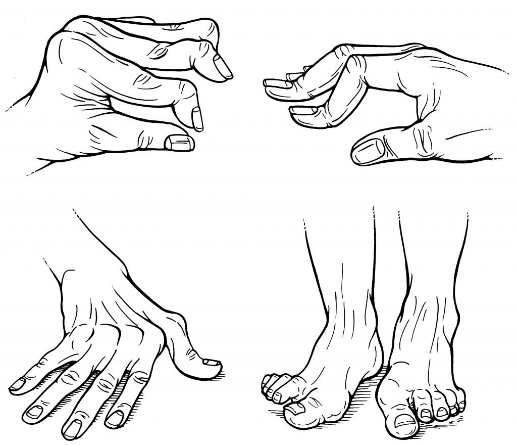 Figure. Rheumatoid arthritis hand deformities
